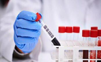 Тайная проверка сдача крови в Перми